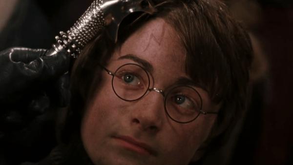 Daniel Radcliffe (Harry Potter) com a cicatriz na testa